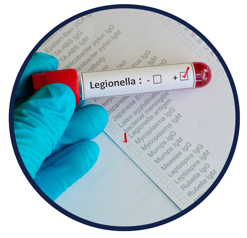 water-legionella-risk-assessments